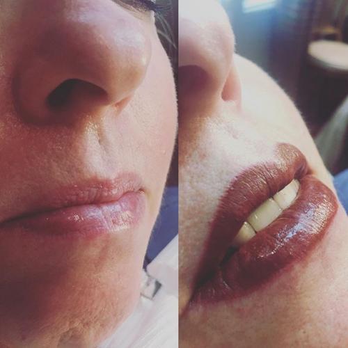lips13